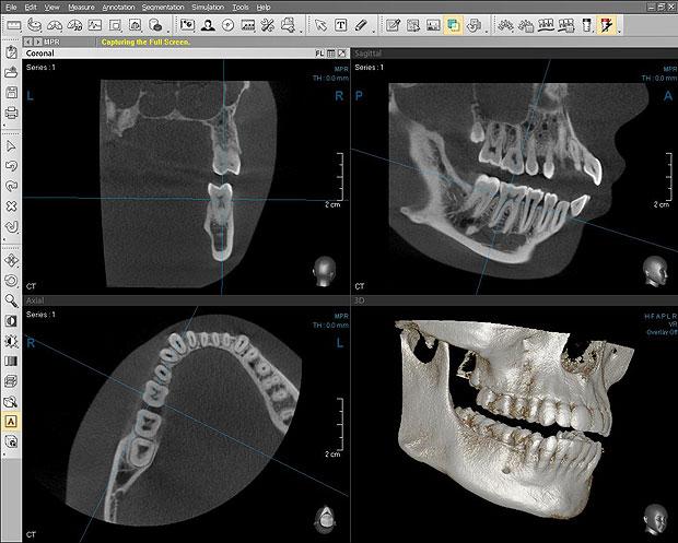 Компьютерного для программа томографа